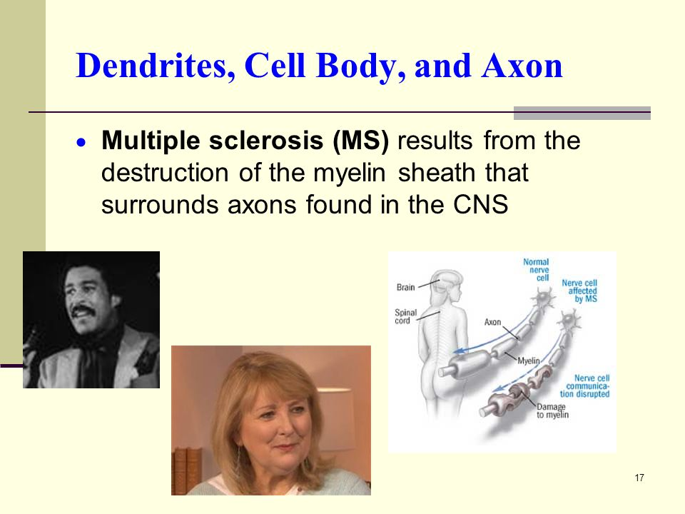 17 Dendrites, Cell Body, and Axon  Multiple sclerosis (MS) results from the destruction of the myelin sheath that surrounds axons found in the CNS
