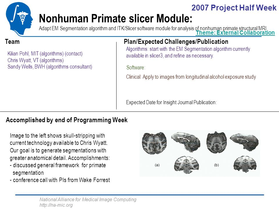 National Alliance for Medical Image Computing http://na-mic.org Nonhuman Primate slicer Module: Adapt EM Segmentation algorithm and ITK/Slicer software module for analysis of nonhuman primate structural MRI.