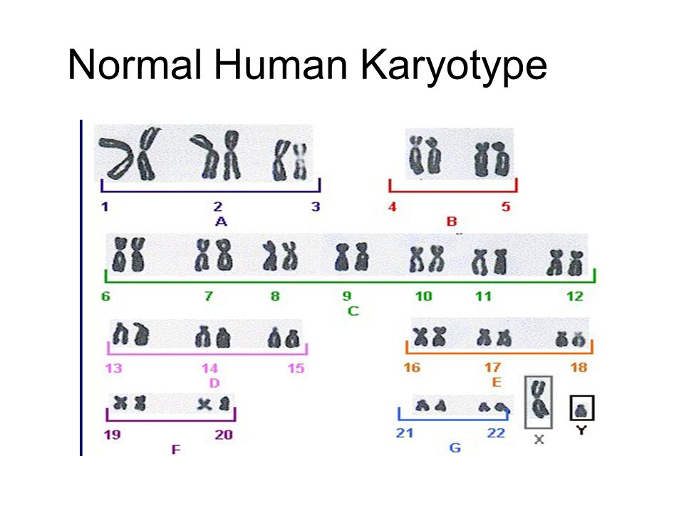 Karyotyping Chromosomes Are Extracted From A Cell Stained