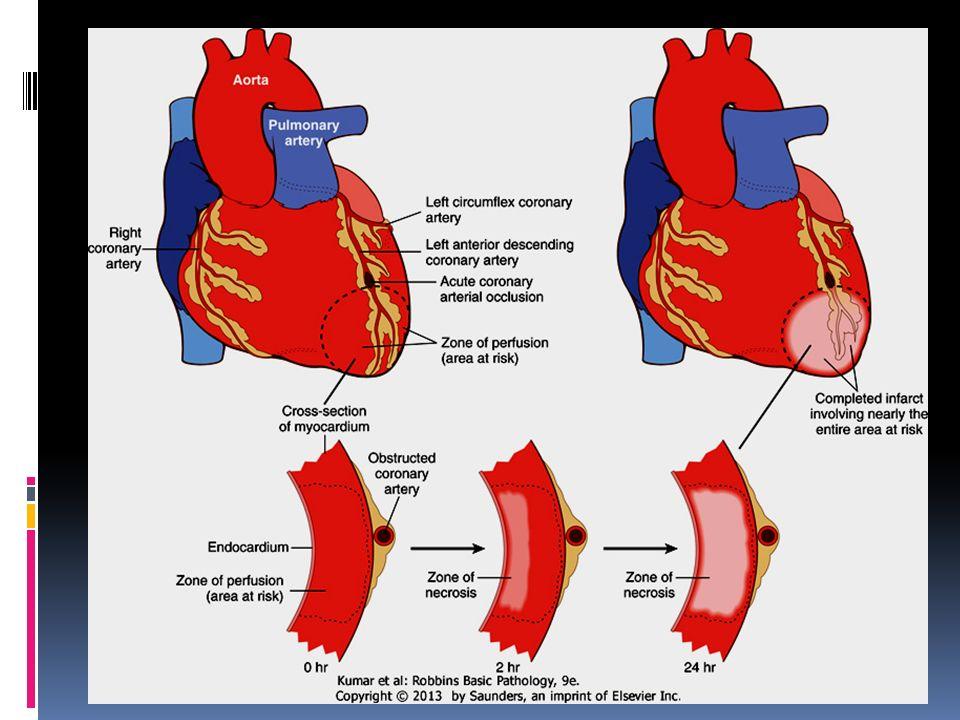 Myocardial Infarction  MI = heart attack  Defined as