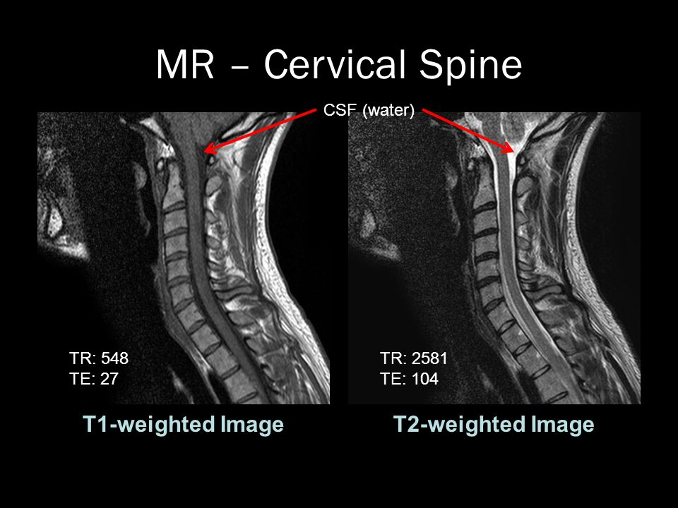 View As A Slideshow To Quiz Yourself Mr Cervical Spine T1