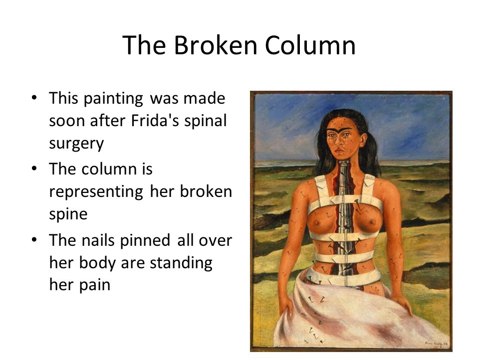 The Broken Column This painting was made soon after Frida s spinal surgery The column is representing her broken spine The nails pinned all over her body are standing her pain 10