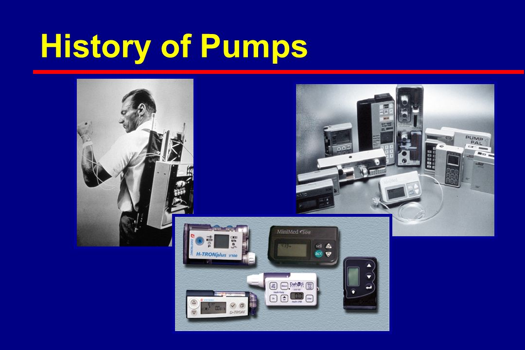 History of Pumps