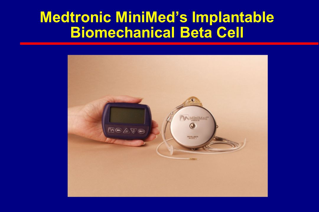Medtronic MiniMed's Implantable Biomechanical Beta Cell