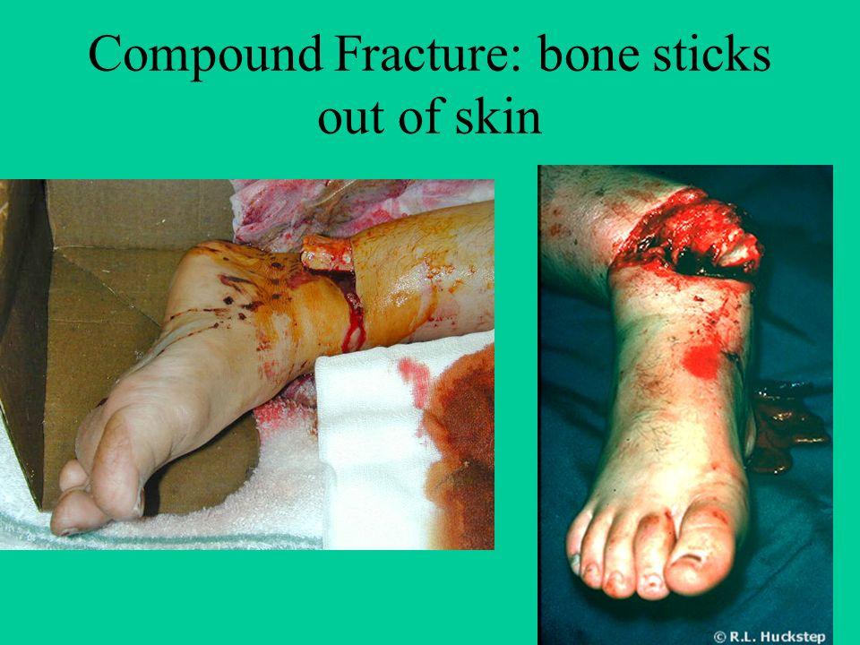 Broken Bones Warningreally Gross Pictures Simple Fracture Bone
