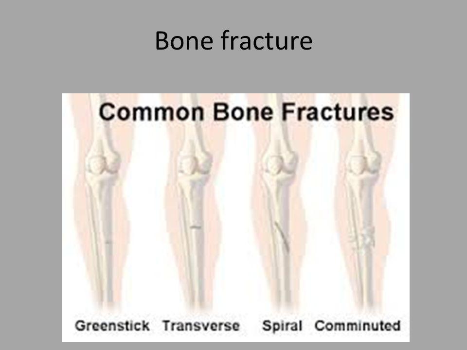 Bone fracture. 1- Simple fracture. clean break overlying skin. 1 ...
