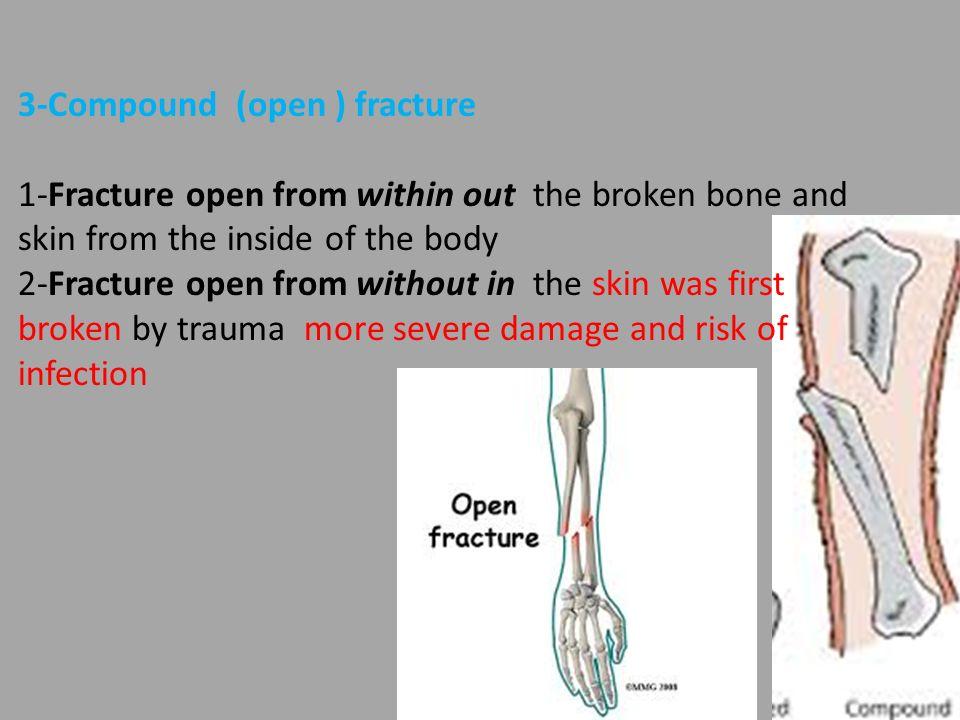 Bone Fracture 1 Simple Fracture Clean Break Overlying Skin 1