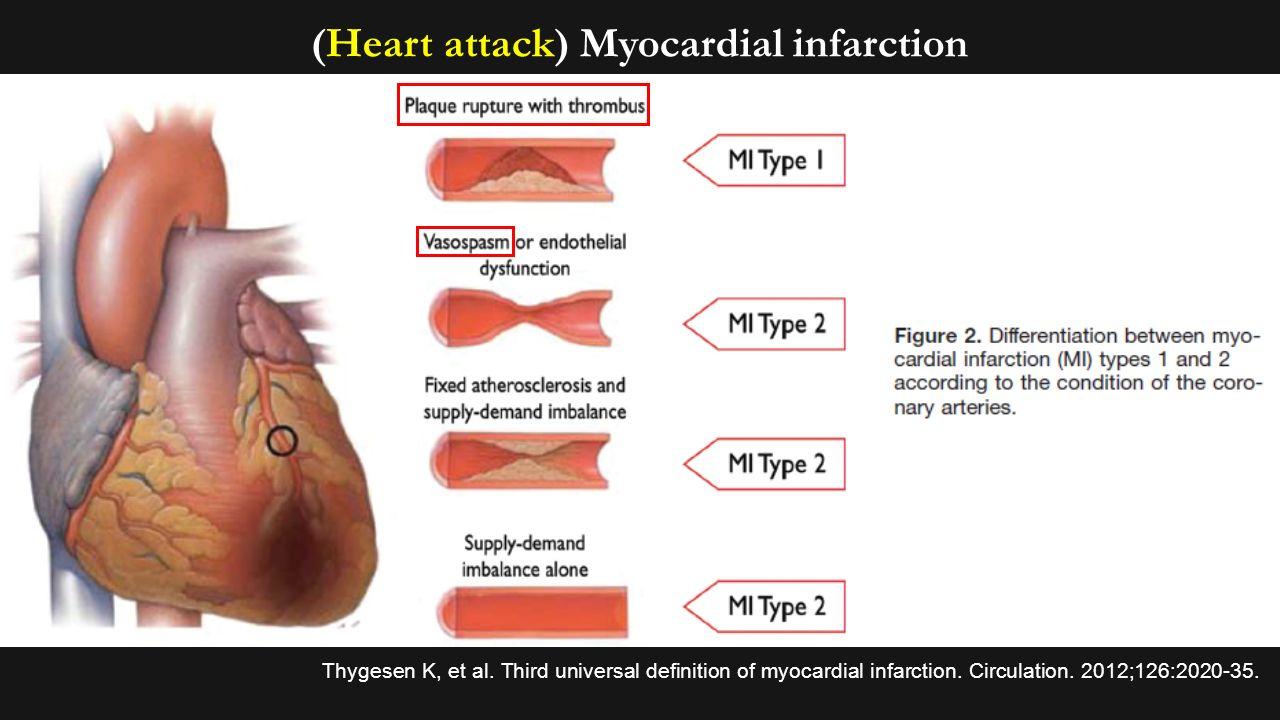 Innate immunity in cardiology: vessel (coronary spasm) and valve ...