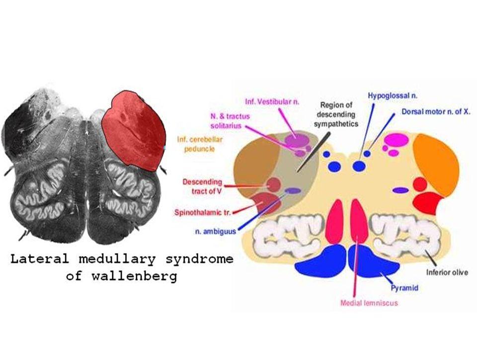 Revision of Cerebellar and Cerebral Disorders & Arterial ...