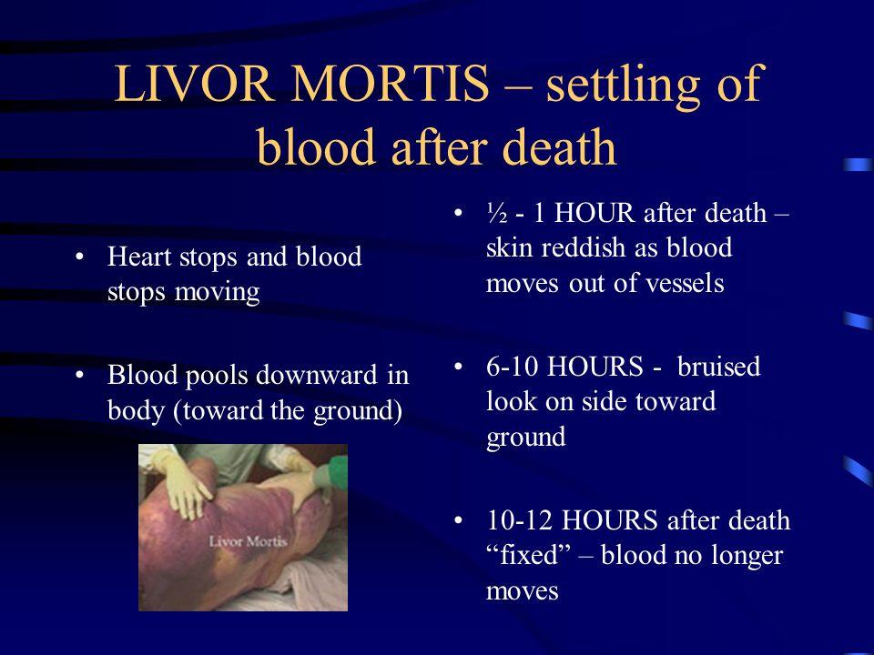 10 Livor Mortis Settling Of Blood After