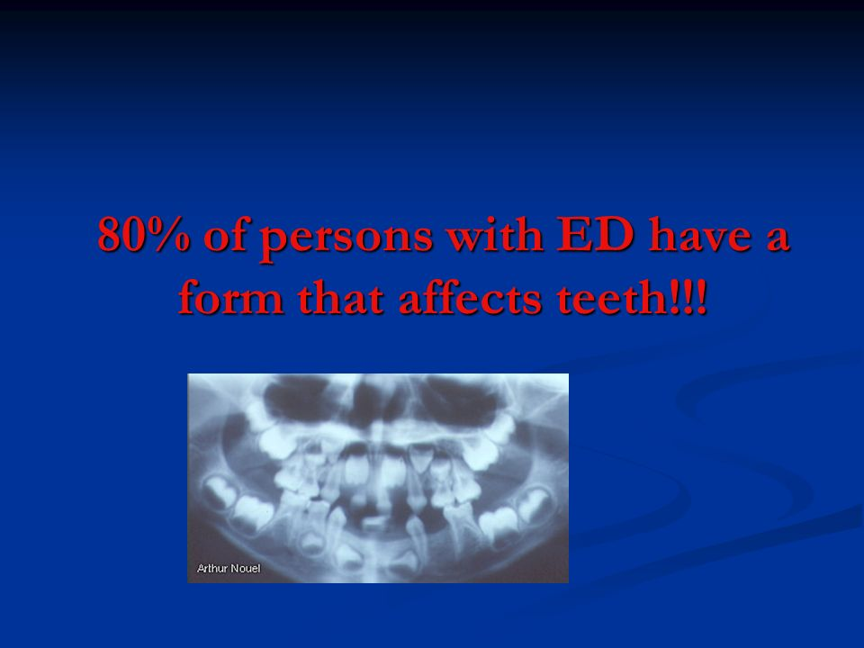 ECTODERMAL DYSPLASIA – DENTAL CALAMITY IN YOUR MOUTH  By