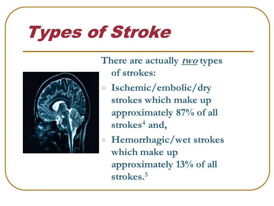 stroke stroke facts about 795 000 americans experience a stroke or