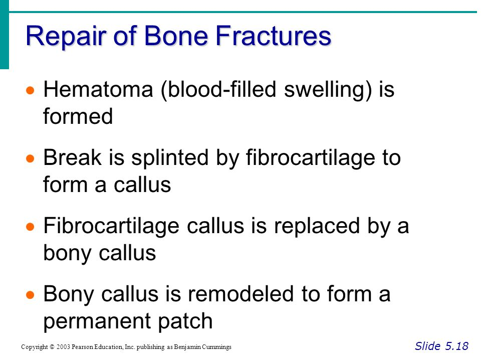 Repair of Bone Fractures Slide 5.18 Copyright © 2003 Pearson Education, Inc.