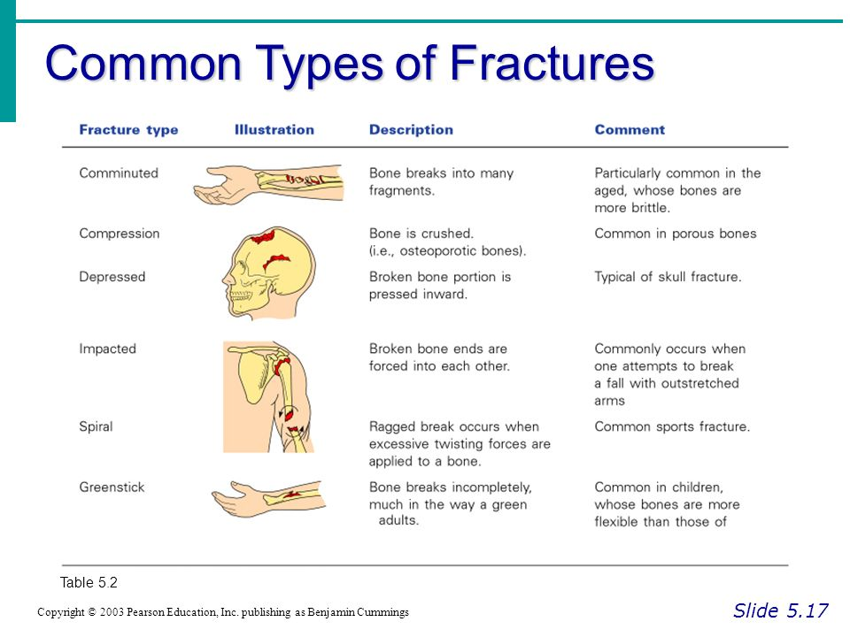 Common Types of Fractures Slide 5.17 Copyright © 2003 Pearson Education, Inc.