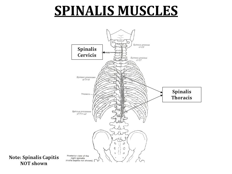 Erector Spinae Muscles Spinalis Thoracis Spinalis Cervicis And