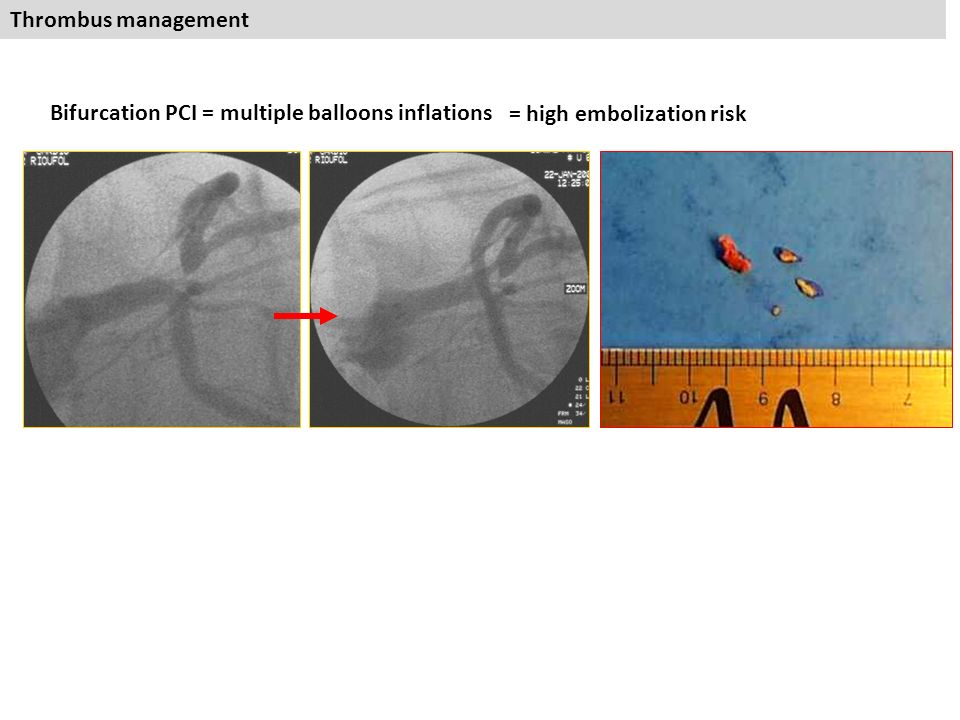 LM strategy Interventional cardiology dpt Cardiovascular