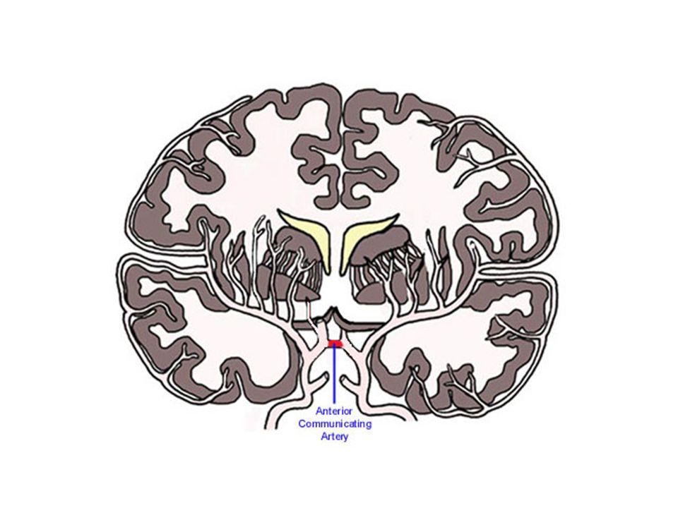 Cerebral Arteries Diagram