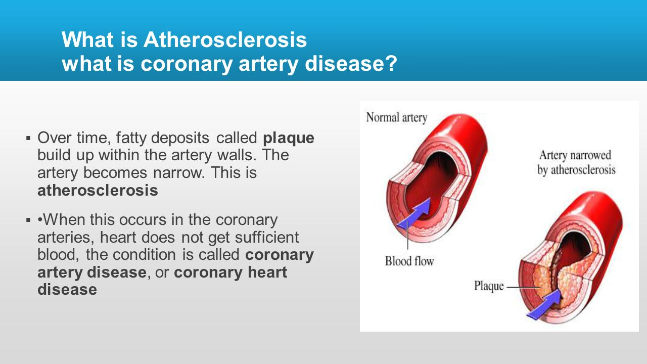 What is atherosclerosis 54