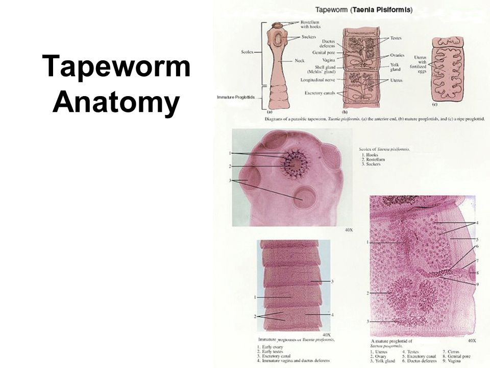 Unsegmented Worms 3 Types: I.Phylum Platyhelminthes Flatworms II ...