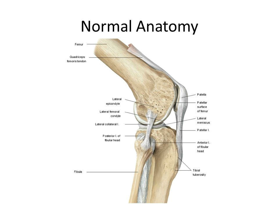 MCL and LCL Injuries. Normal Anatomy Mechanism of Injury MCL Valgus ...