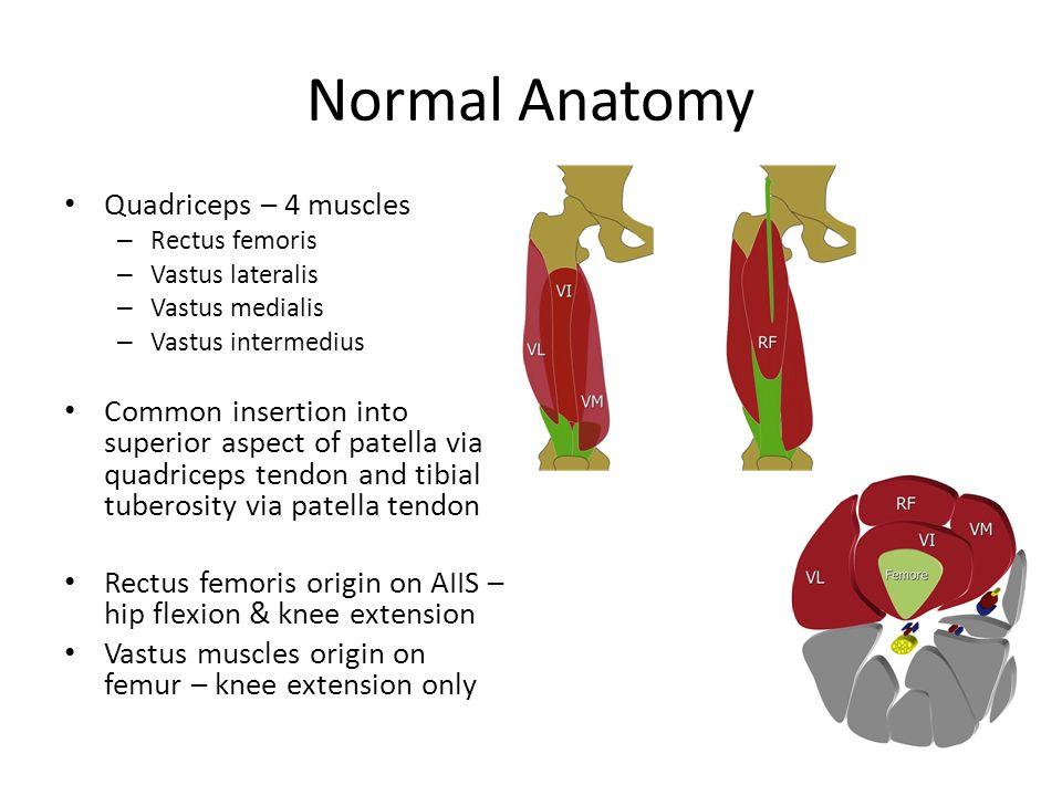 Quadriceps Strains & Contusions. Normal Anatomy Quadriceps – 4 ...