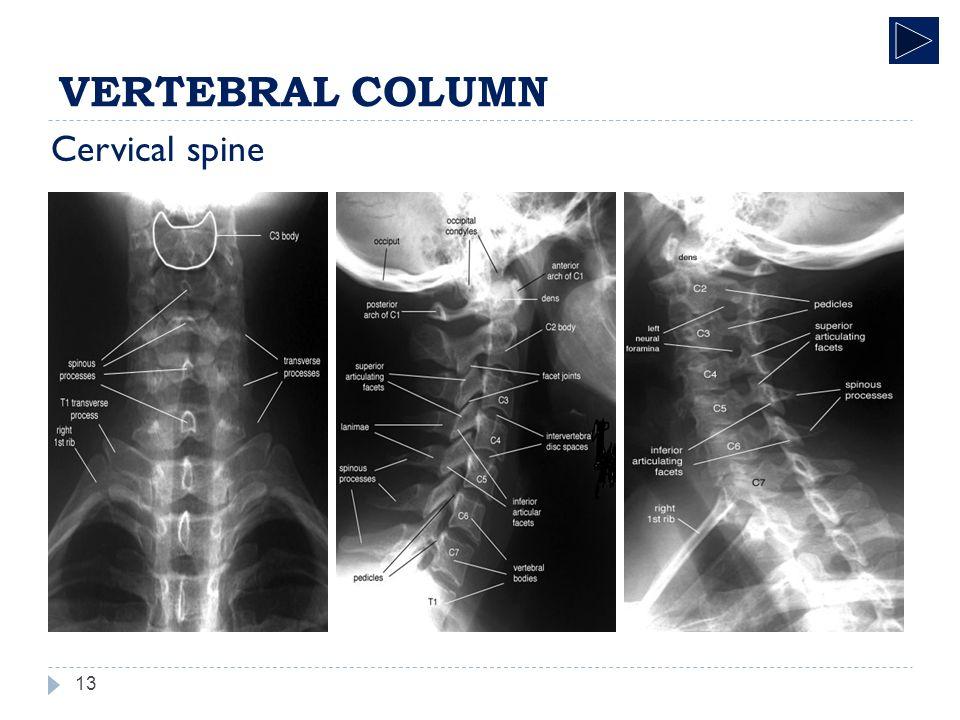 Radiographic Anatomy Skeletal System VERTEBRAL COLUMN. - ppt download