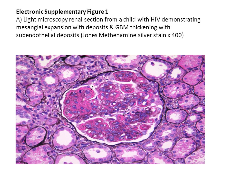 electronic supplementary figure 1 a light microscopy renal section
