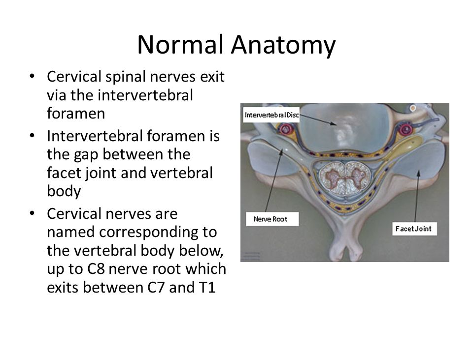 Cervical Radiculopathy Normal Anatomy Cervical Spinal Nerves Exit