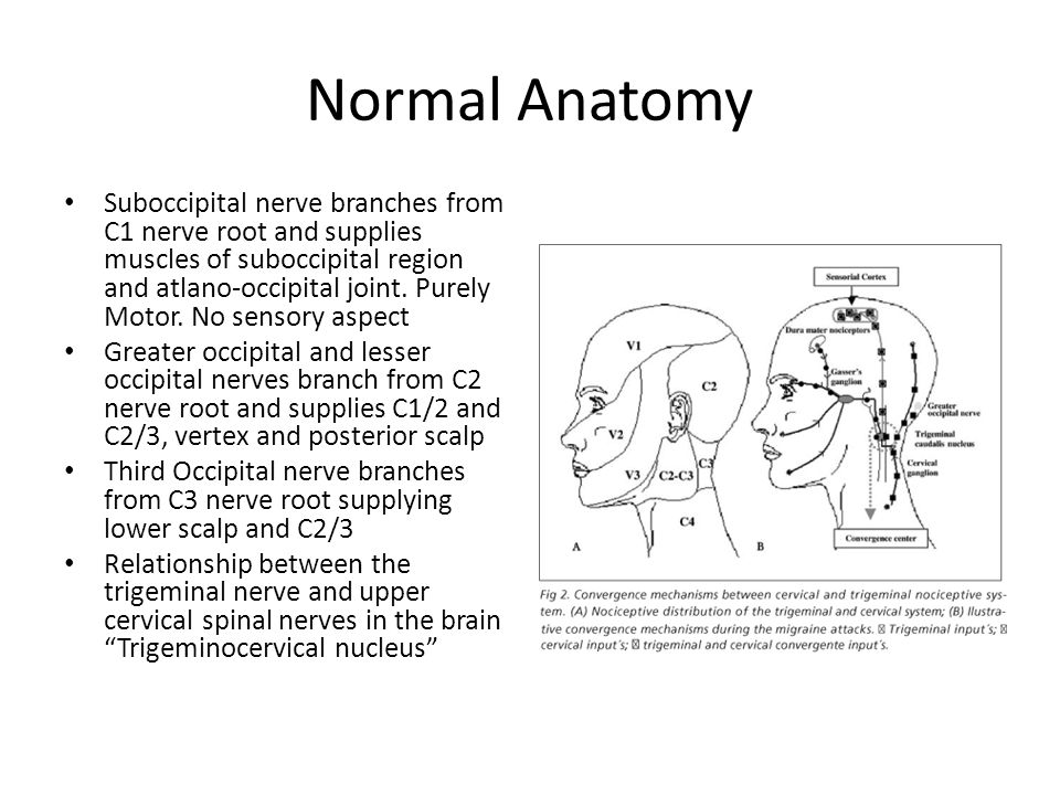 Cervicogenic Headaches. Normal Anatomy Vast amount of soft tissue ...