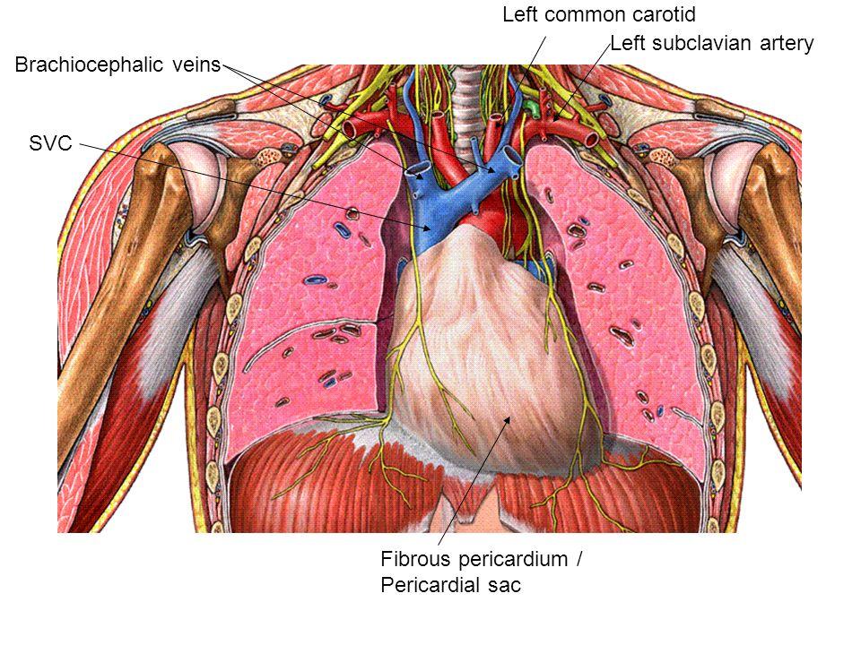Fibrous pericardium / Pericardial sac SVC Brachiocephalic veins Left ...