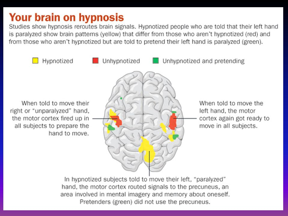 hypnosis is not real