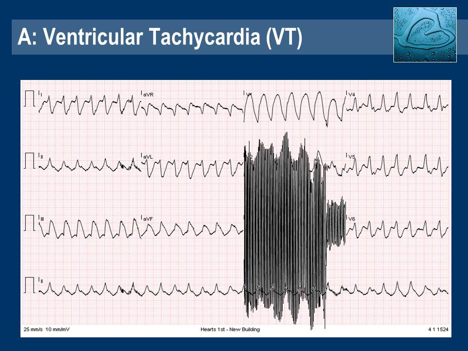 ECG Workshop Dr Jeremy Wright Cardiologist Hearts1st