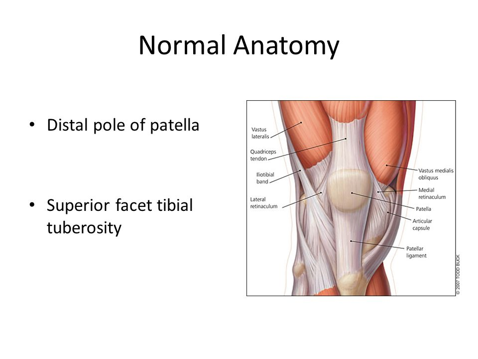 Patellar Tendinopathy Normal Anatomy Distal Pole Of Patella