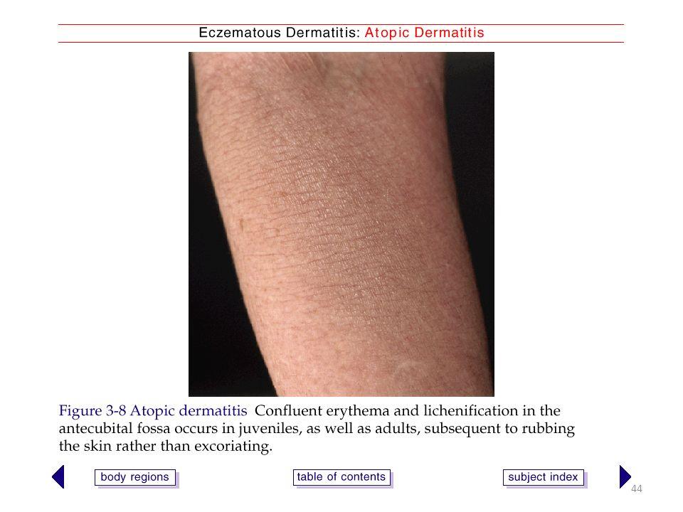 Eczema (dermatitis) and Lichenification Ecema 1. 2 The word 'eczema ...