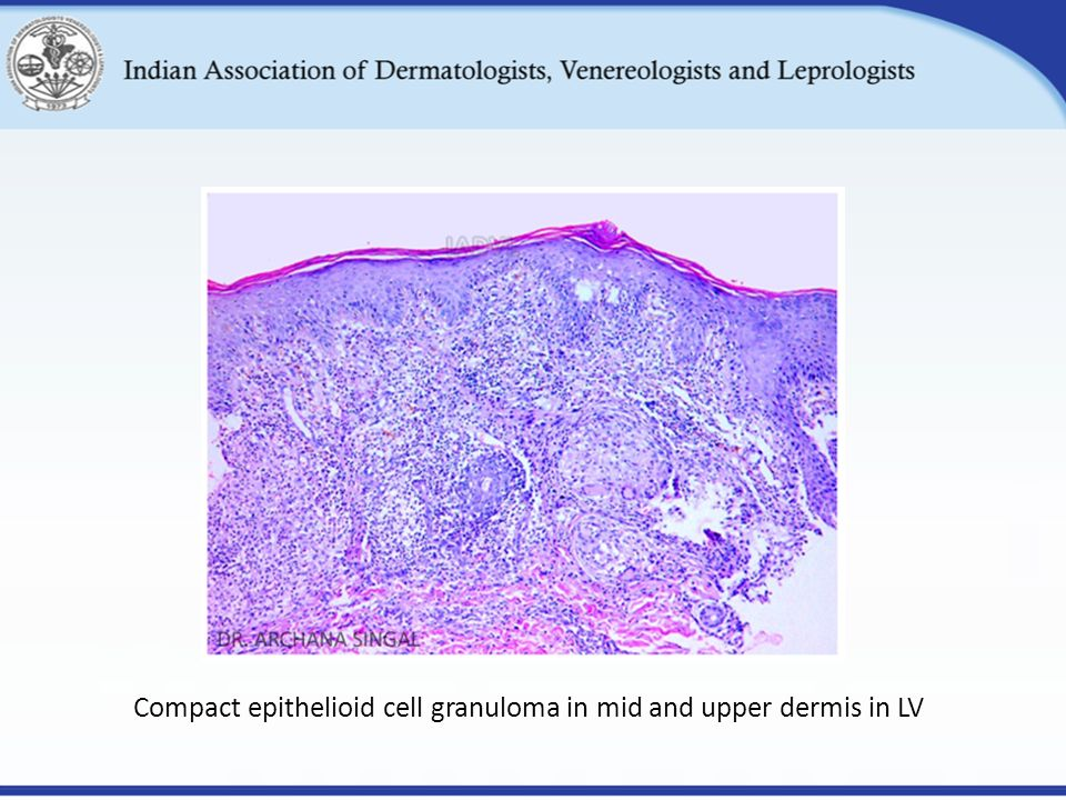 Compact epithelioid cell granuloma in mid and upper dermis in LV