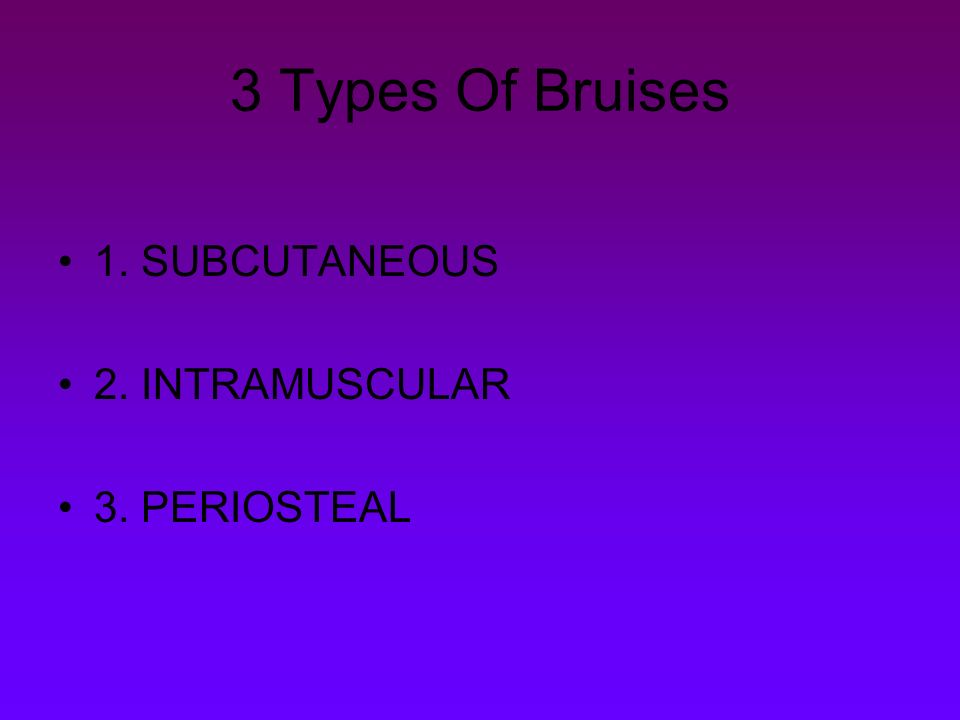 Contusions Bruises By Charissa Vannatter What Is A Bruise A