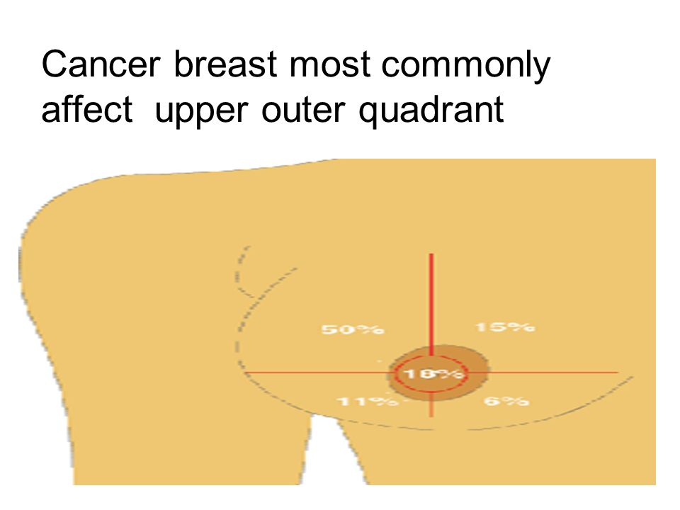 Breast cancer quadrant incidence