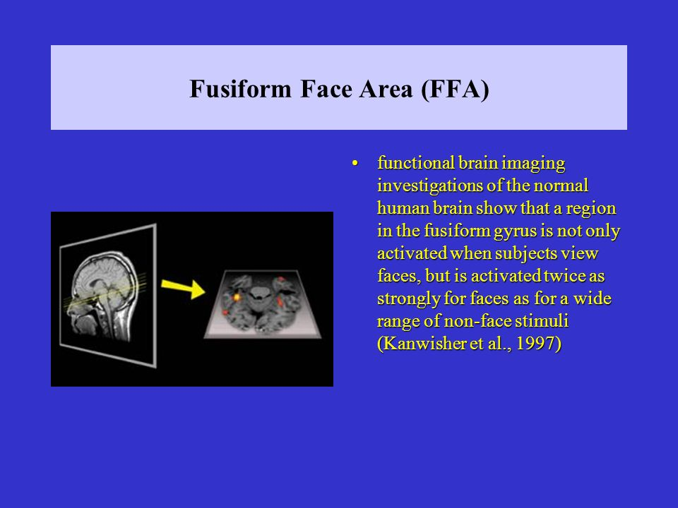Fusiform Face Area (FFA) functional brain imaging investigations of the normal human brain show that a region in the fusiform gyrus is not only activated when subjects view faces, but is activated twice as strongly for faces as for a wide range of non-face stimuli (Kanwisher et al., 1997)functional brain imaging investigations of the normal human brain show that a region in the fusiform gyrus is not only activated when subjects view faces, but is activated twice as strongly for faces as for a wide range of non-face stimuli (Kanwisher et al., 1997)