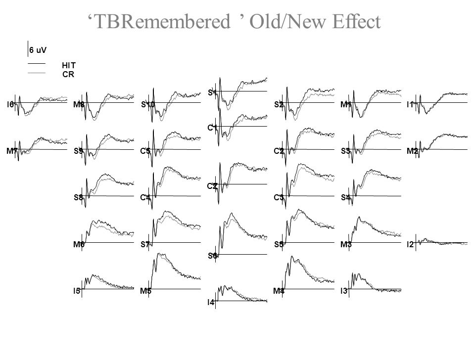TBRemembered Old/New Effect 6 uV HIT CR