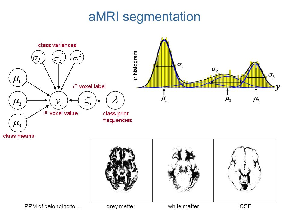 aMRI segmentation grey matterPPM of belonging to … CSFwhite matter