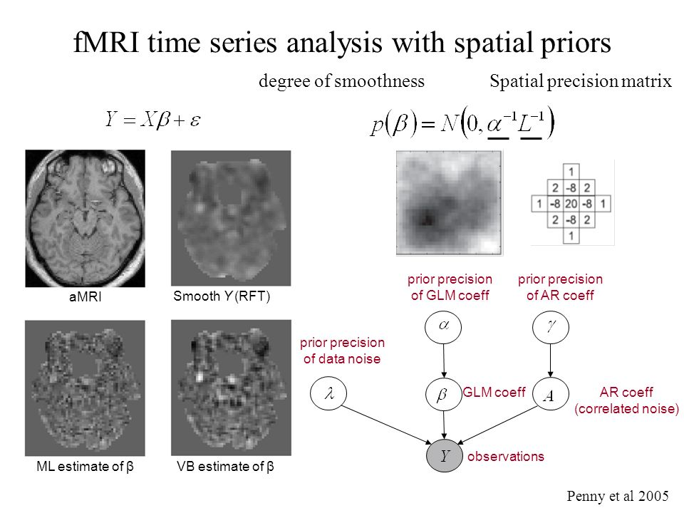 AR coeff (correlated noise) prior precision of AR coeff VB estimate of β ML estimate of β aMRI Smooth Y (RFT) fMRI time series analysis with spatial priors observations GLM coeff prior precision of GLM coeff prior precision of data noise Penny et al 2005 degree of smoothnessSpatial precision matrix