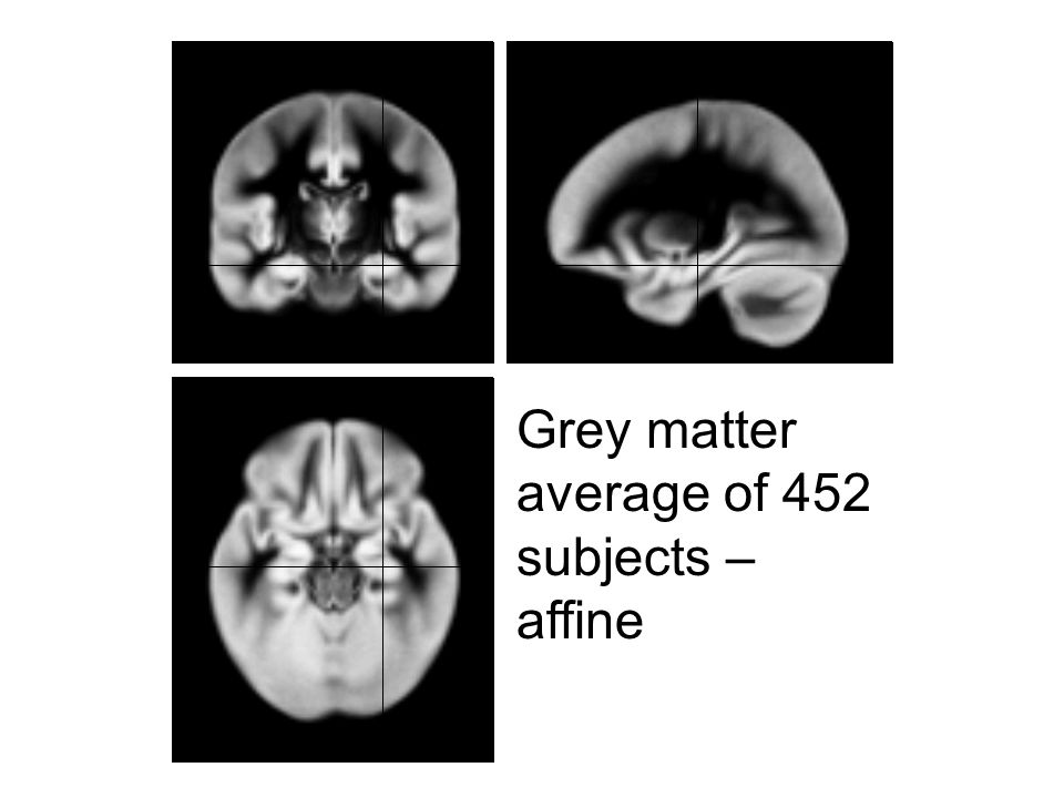 Grey matter average of 452 subjects – affine