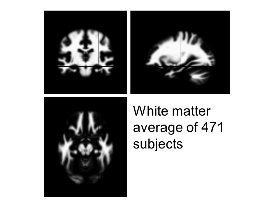 White matter average of 471 subjects