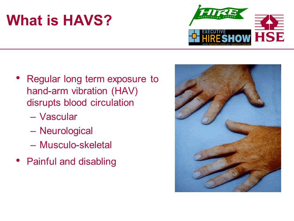 What is HAVS.