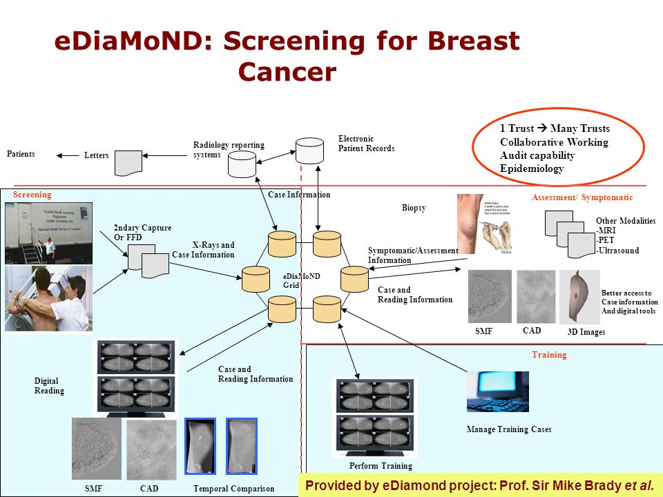 eDiaMoND: Screening for Breast Cancer 1 Trust Many Trusts Collaborative Working Audit capability Epidemiology Other Modalities -MRI -PET -Ultrasound Better access to Case information And digital tools Supplement Mentoring With access to digital Training cases and sharing Of information across clinics Letters Radiology reporting systems eDiaMoND Grid 2ndary Capture Or FFD Case Information X-Rays and Case Information Digital Reading SMF Case and Reading Information CADTemporal Comparison Screening Electronic Patient Records Assessment/ Symptomatic Biopsy Case and Reading Information Symptomatic/Assessment Information Training Manage Training Cases Perform Training SMF CAD 3D Images Patients Provided by eDiamond project: Prof.