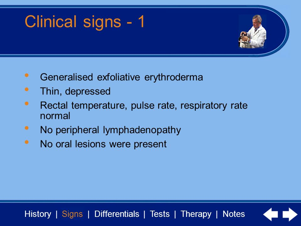 History | Signs | Differentials | Tests | Therapy | Notes Clinical signs - 1 Signs Generalised exfoliative erythroderma Thin, depressed Rectal temperature, pulse rate, respiratory rate normal No peripheral lymphadenopathy No oral lesions were present