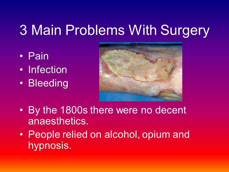 3 Main Problems With Surgery Pain Infection Bleeding By the 1800s there were no decent anaesthetics.