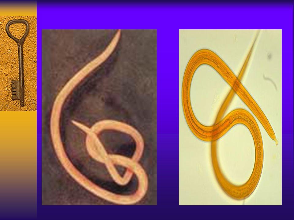 Viermi rotunzi în medicina adultă. Semne si simptome Nemathelminthes hookworm