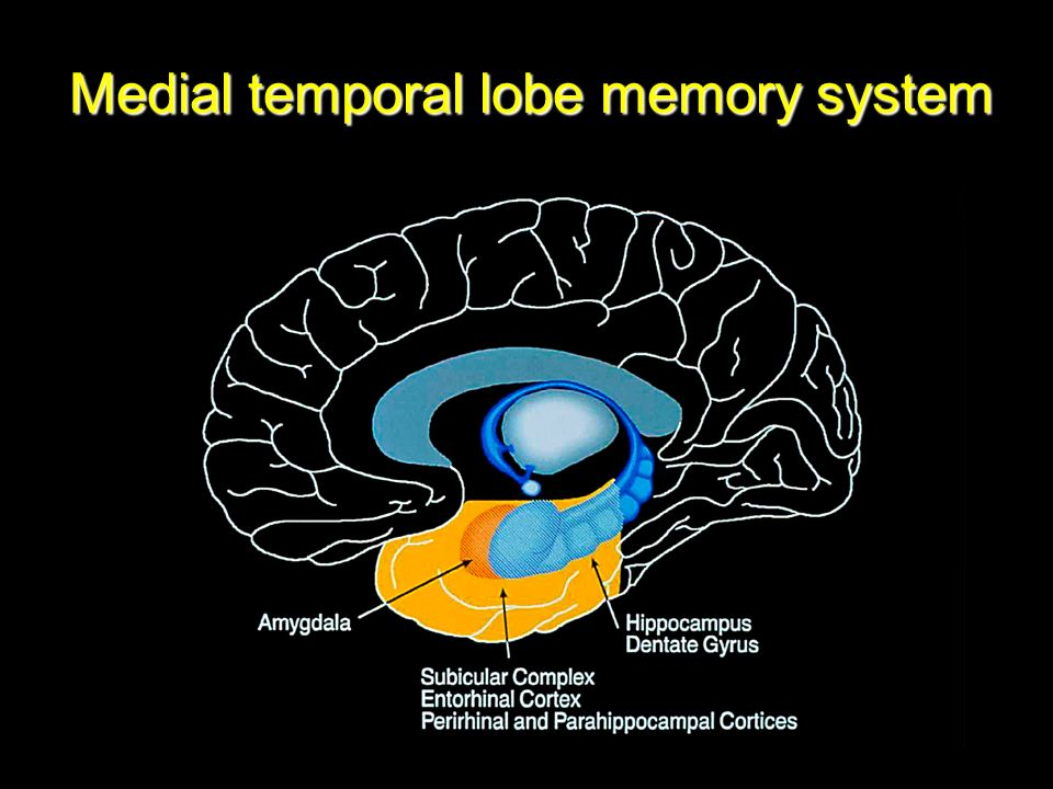 Outstanding Anatomy Of Temporal Lobe Photos Anatomy And Physiology