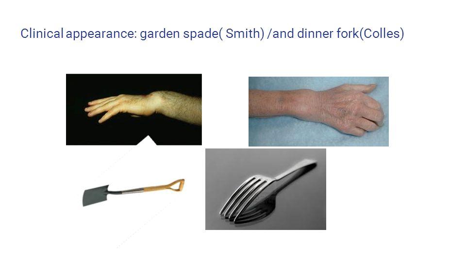 smith fracture garden spade - 960×540